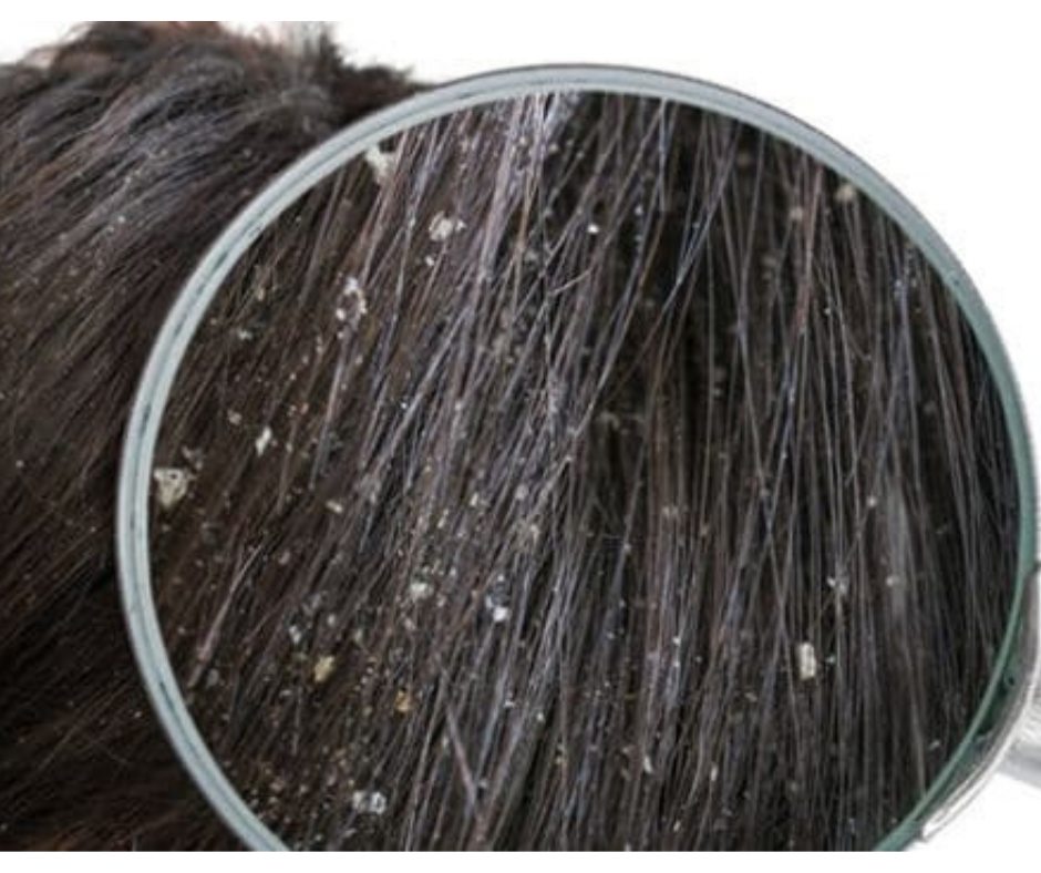 HOW TO GET RID OF DANDRUFF?