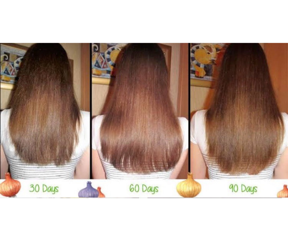 ONION HAIR CARE MASK FOR LONG HAIR