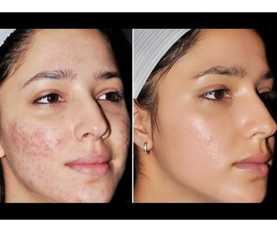 GET CLEAR, BRIGHT, AND AN ACNE-FREE SKIN