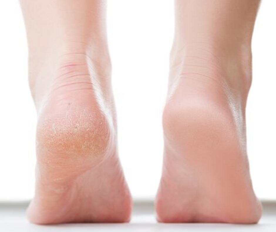 DIY FOOT CREAM FOR SOFT AND SMOOTH FEET